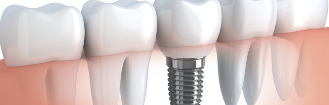 Surgical & Restorative Techniques for the GP/ How to Double Your Monthly Implant Cases